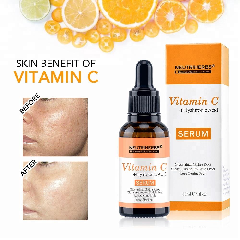 Abtreiben Mit Vitamin C